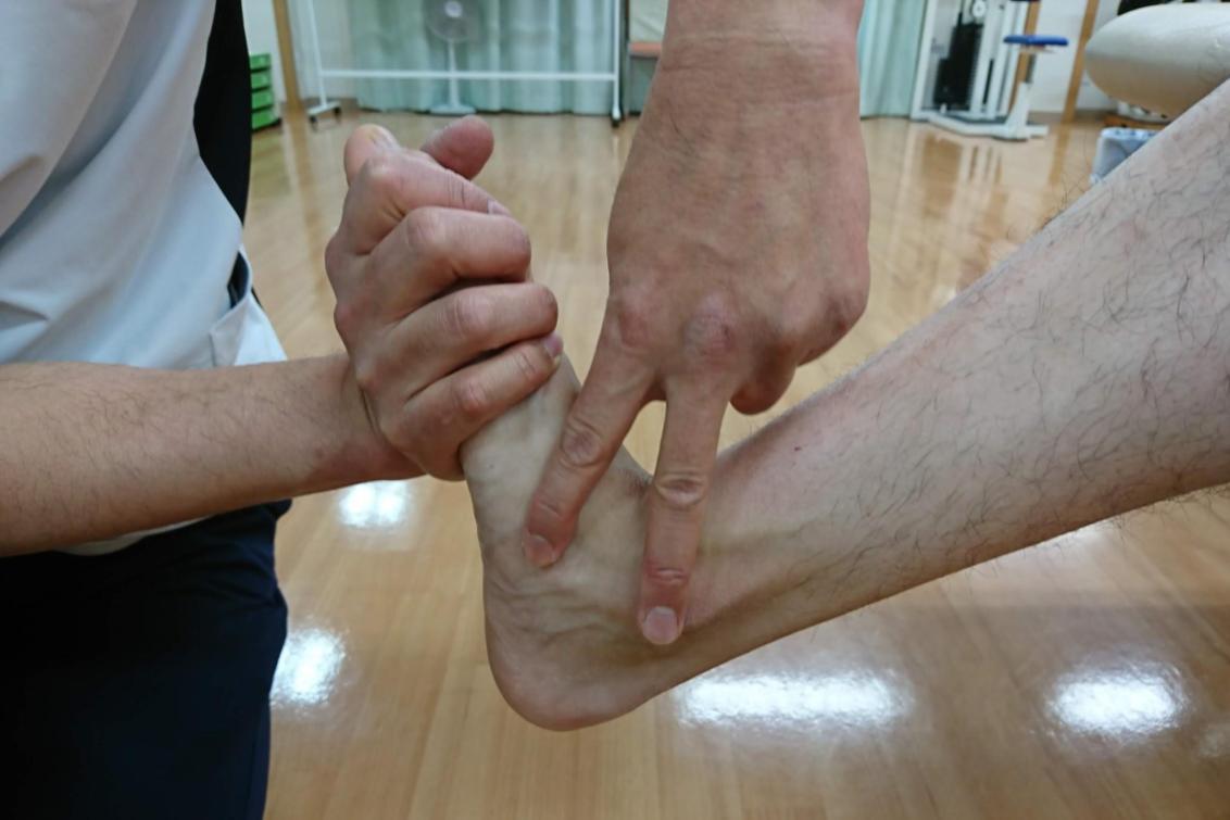 足関節のアライメント評価
