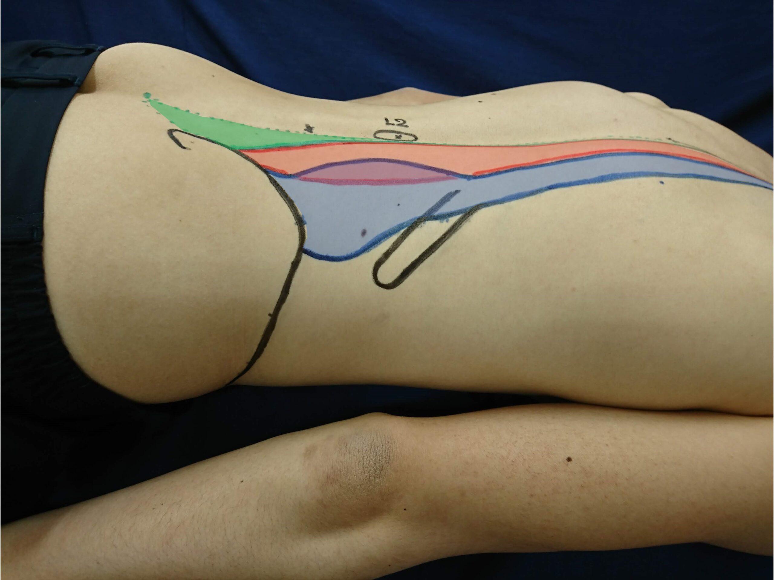 体幹の筋を触察するためのランドマーク
